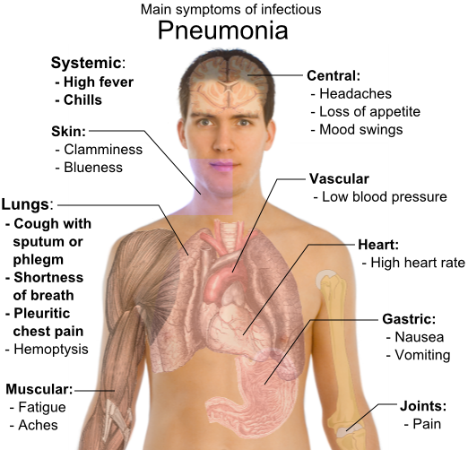 Aspiration pneumonia signs and symptoms.  Rate, and lung cancer.
